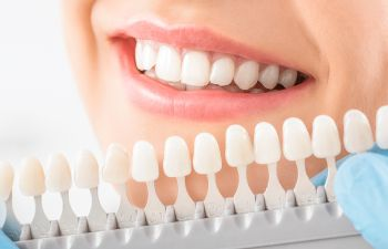 matching teeth color