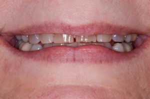 dental patient with occlusal wear