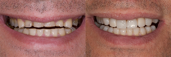 patient's teeth before and after dental treatments for occlusal wear